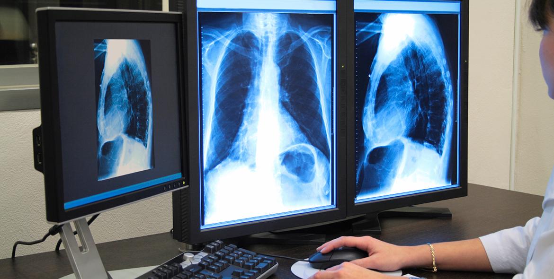 AKGÜN Radyoloji Bilgi Sistemi (RBS)